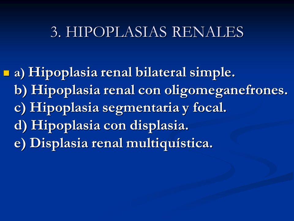 3. HIPOPLASIAS RENALES 3. HIPOPLASIAS RENALES a) Hipoplasia renal bilateral simple. b) Hipoplasia renal con oligomeganefrones. c) Hipoplasia segmentar