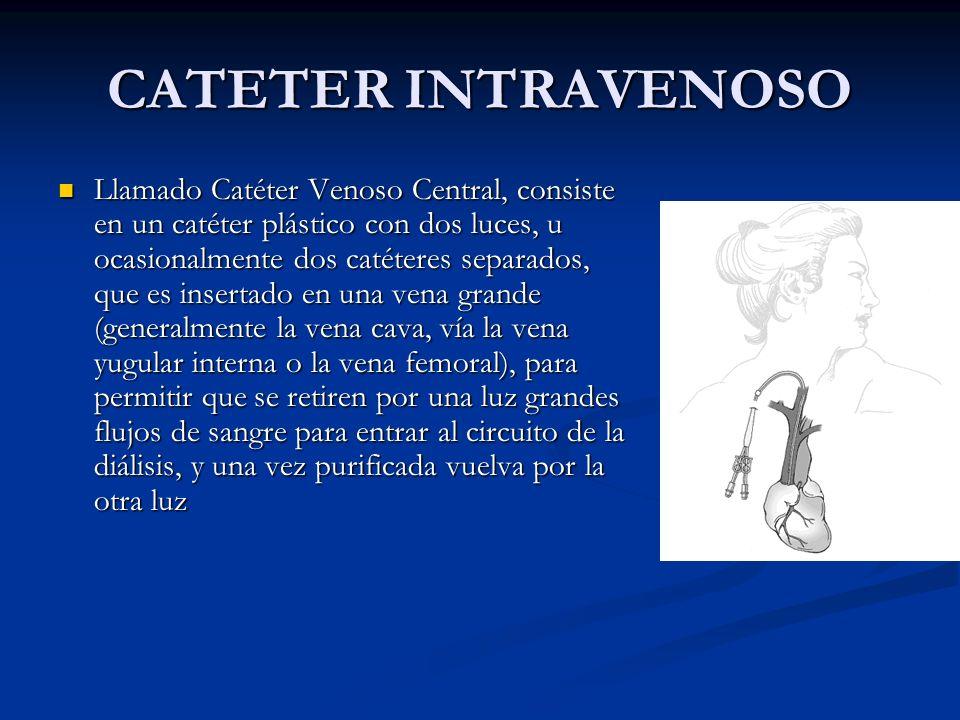 CATETER INTRAVENOSO Llamado Catéter Venoso Central, consiste en un catéter plástico con dos luces, u ocasionalmente dos catéteres separados, que es in