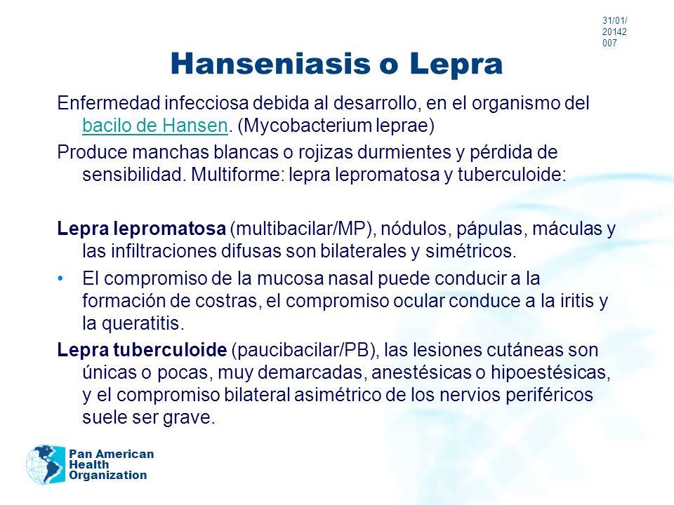 Hanseniasis o Lepra Enfermedad infecciosa debida al desarrollo, en el organismo del bacilo de Hansen. (Mycobacterium leprae) bacilo de Hansen Produce
