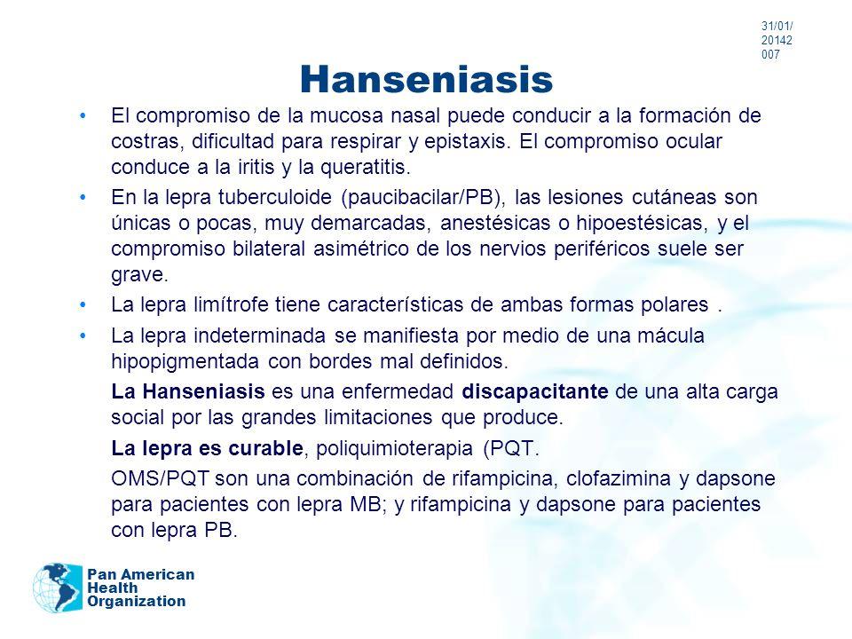 Hanseniasis El compromiso de la mucosa nasal puede conducir a la formación de costras, dificultad para respirar y epistaxis. El compromiso ocular cond