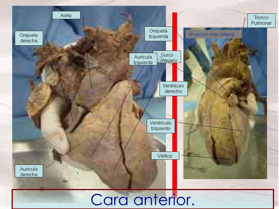 Un poco más lateral. Cara anterior. Orejuela derecha Aorta Aurícula derecha Ventrículo derecho Surco Coronario Aurícula Izquierda Orejuela Izquierda T