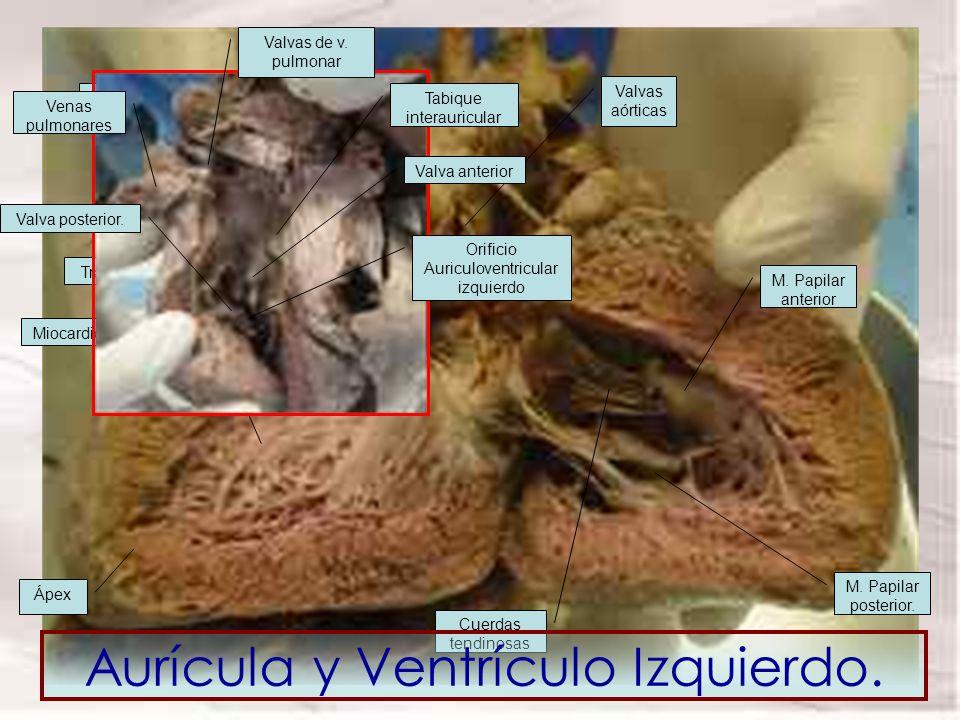 Trabéculas Miocardio Tabique interventricular M. Papilar anterior M. Papilar posterior. Ápex Cuerdas tendinosas Vestíbulo aórtico Valvas aórticas Tabi