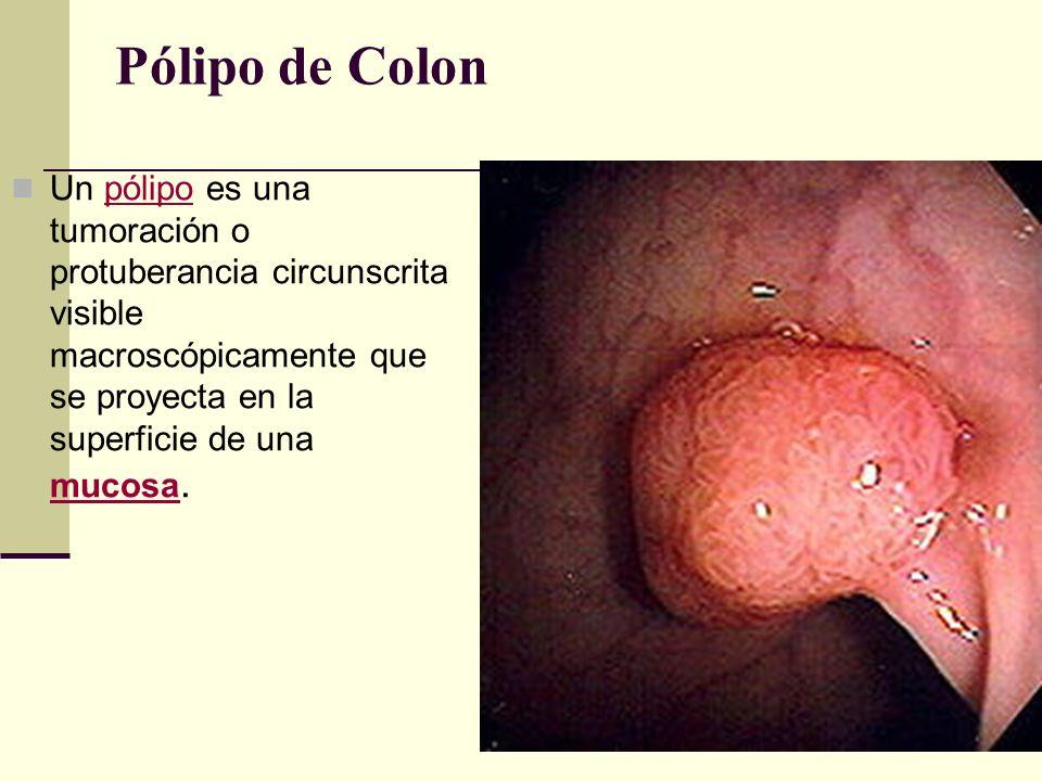 Pólipo de Colon Un pólipo es una tumoración o protuberancia circunscrita visible macroscópicamente que se proyecta en la superficie de una mucosa.póli