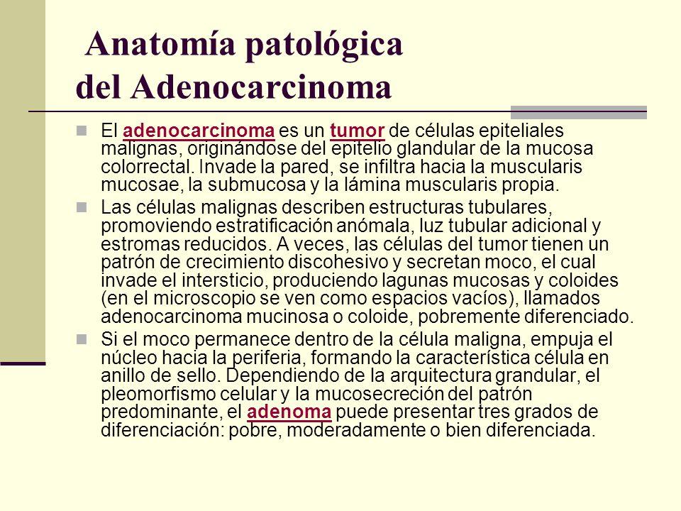 Anatomía patológica del Adenocarcinoma El adenocarcinoma es un tumor de células epiteliales malignas, originándose del epitelio glandular de la mucosa