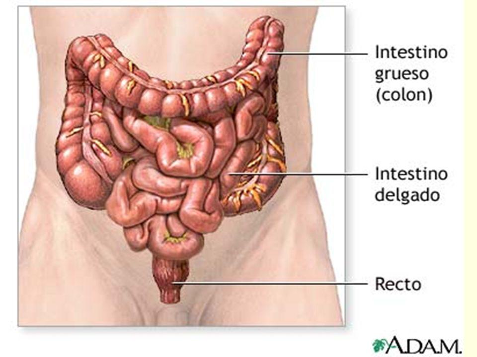 Clasificación de los Pólipos del Colon Pólipo neoplásico epitelial o pólipos adenomatosos o adenomas: Adenoma tubular, adenoma tubulovelloso y adenoma velloso.