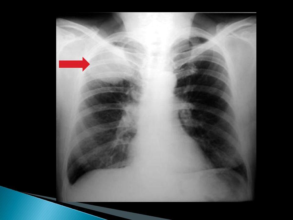 Manifestaciones radiológicas: 1:- Anormalidades en región hiliar con aumento o prominencia de la densidad hiliar. 2:- Alteraciones del parenquima pulm