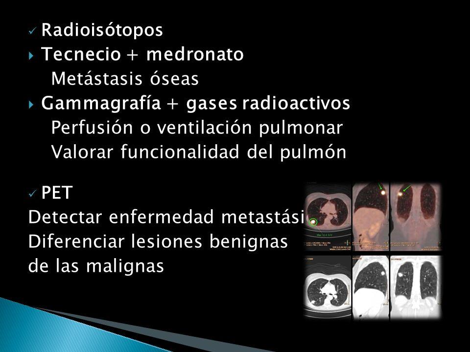 Biopsia percutánea con aguja Control videoscópico o TC Lesiones periféricas Alto grado de exactitud Riesgo siembra del tumor neumotórax o hemorragia M