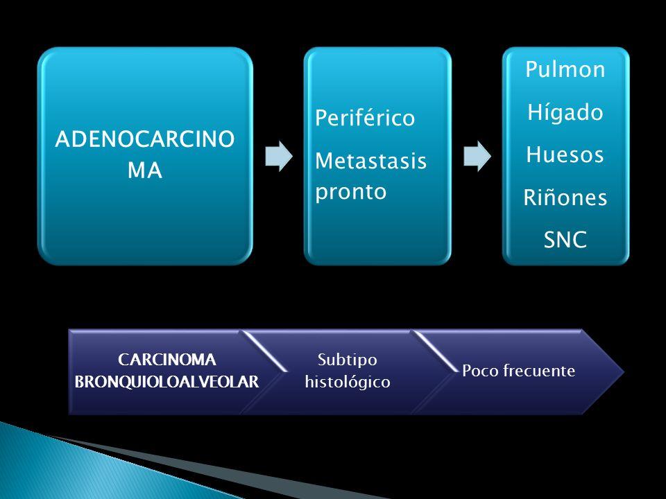 Tumor de células pequeñas (25%) Tumor de células no pequeñas: carcinoma epidermoide, adenocarcinoma, indiferenciados de células grandes, bronquioalveo