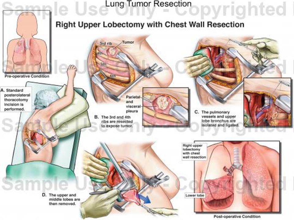 Algunos tumores en estadio III se consideran en el límite para la indicación quirúrgica. Contraindicaciones: Metastasis extratorácicas o a distancia.