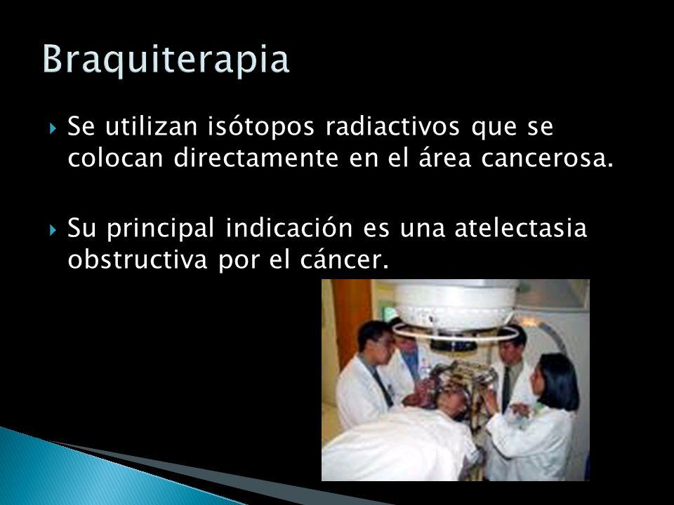 Es implantar fuentes radioactivas o administrar una dosis única de radiación externa en el momento de la cirugía. Es implantar fuentes radioactivas o