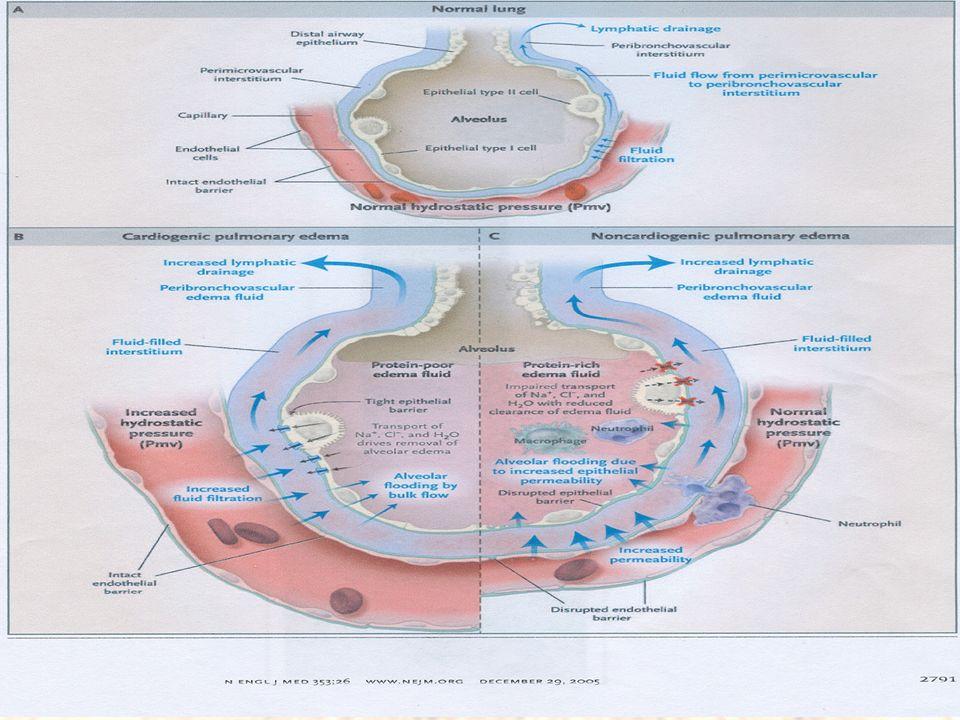 Manifestaciones clínicas Angustia Disnea ( Ortopnea ) Piel fría y sudorosa Esputo espumoso Examen físico: Taquicardia Taquipnea Crepitantes y sibilantes Ritmo de galope (Dx diferencial )