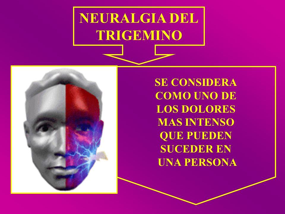 SE CONSIDERA COMO UNO DE LOS DOLORES MAS INTENSO QUE PUEDEN SUCEDER EN UNA PERSONA NEURALGIA DEL TRIGEMINO