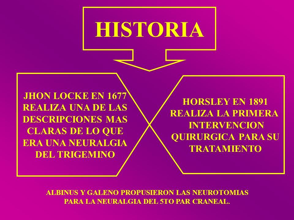 HISTORIA JHON LOCKE EN 1677 REALIZA UNA DE LAS DESCRIPCIONES MAS CLARAS DE LO QUE ERA UNA NEURALGIA DEL TRIGEMINO HORSLEY EN 1891 REALIZA LA PRIMERA I