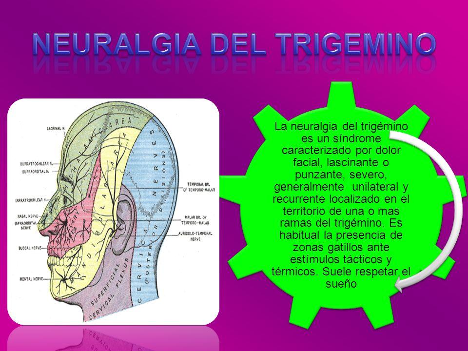 La neuralgia del trigémino es un síndrome caracterizado por dolor facial, lascinante o punzante, severo, generalmente unilateral y recurrente localiza