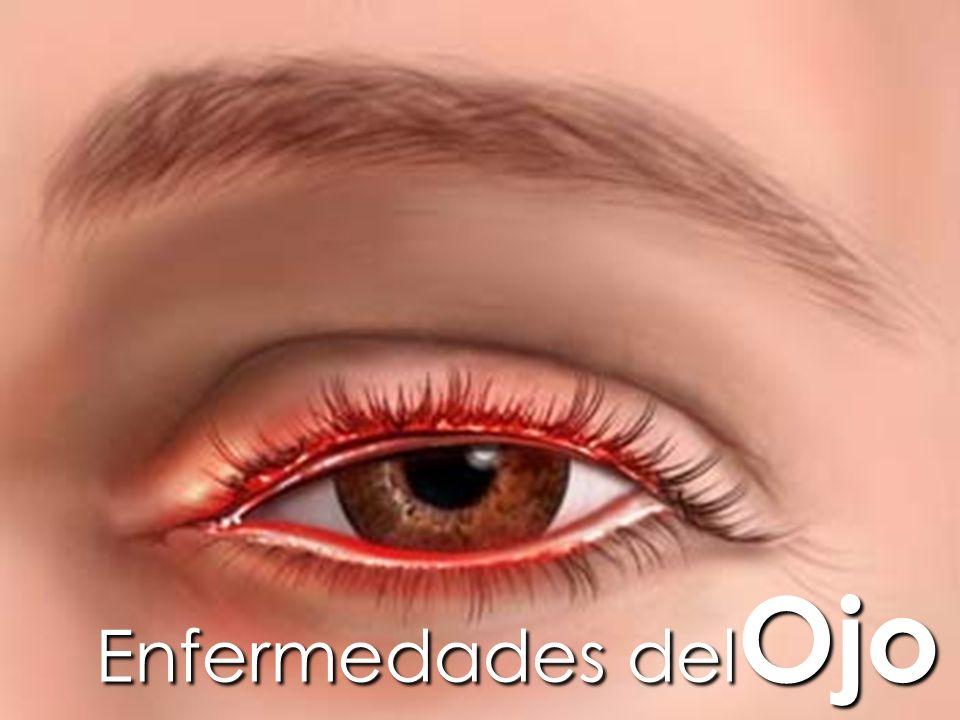 Evolución tracoma