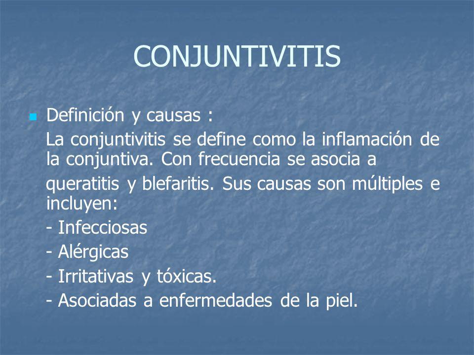 CONJUNTIVITIS Definición y causas : La conjuntivitis se define como la inflamación de la conjuntiva. Con frecuencia se asocia a queratitis y blefariti