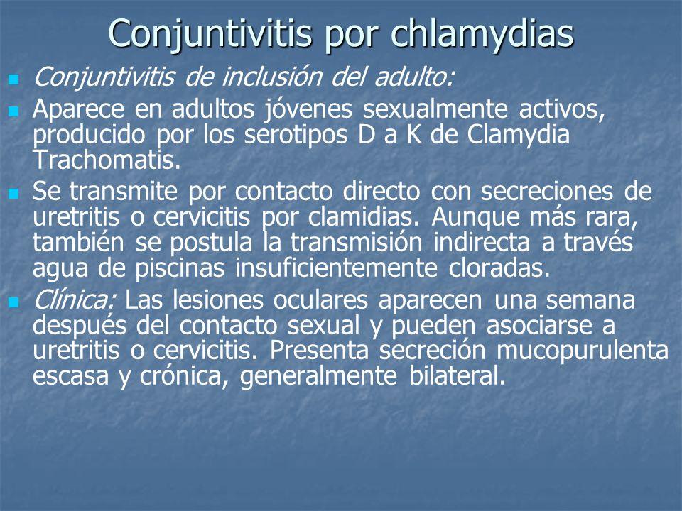 Conjuntivitis por chlamydias Conjuntivitis de inclusión del adulto: Aparece en adultos jóvenes sexualmente activos, producido por los serotipos D a K