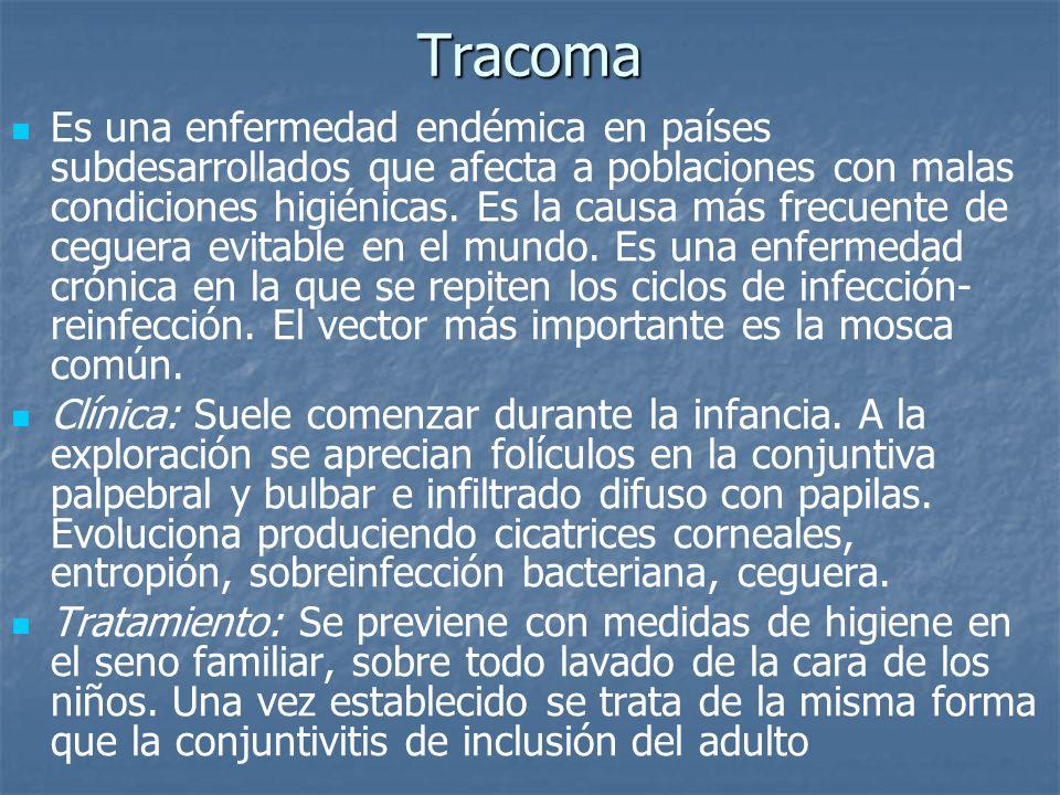 Tracoma Es una enfermedad endémica en países subdesarrollados que afecta a poblaciones con malas condiciones higiénicas. Es la causa más frecuente de