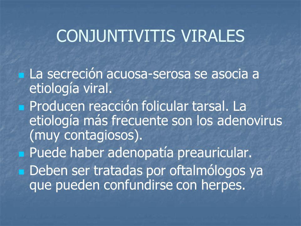 CONJUNTIVITIS VIRALES La secreción acuosa-serosa se asocia a etiología viral. Producen reacción folicular tarsal. La etiología más frecuente son los a