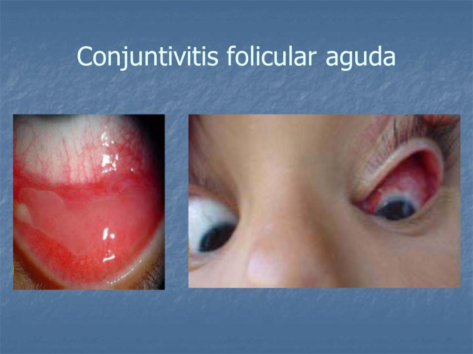 Conjuntivitis folicular aguda