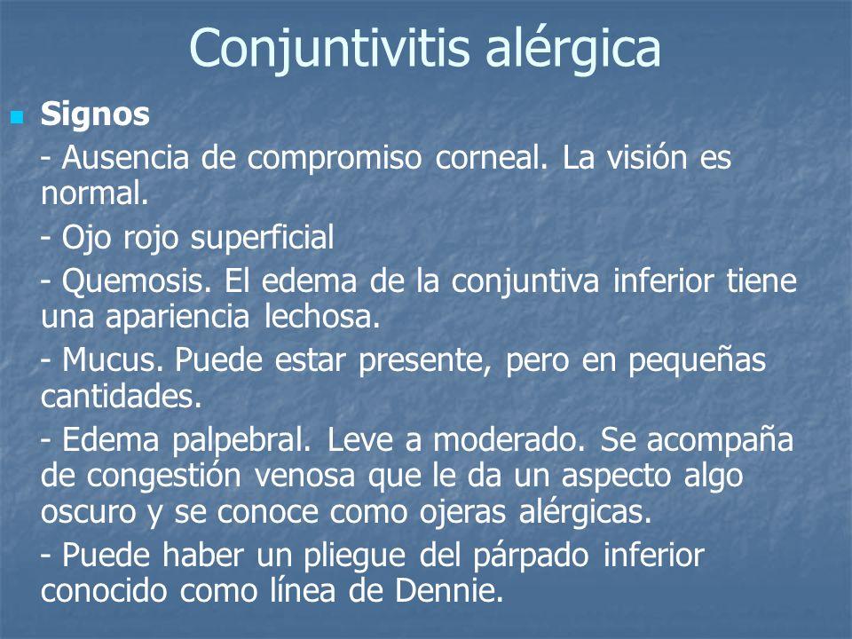 Conjuntivitis alérgica Signos - Ausencia de compromiso corneal. La visión es normal. - Ojo rojo superficial - Quemosis. El edema de la conjuntiva infe