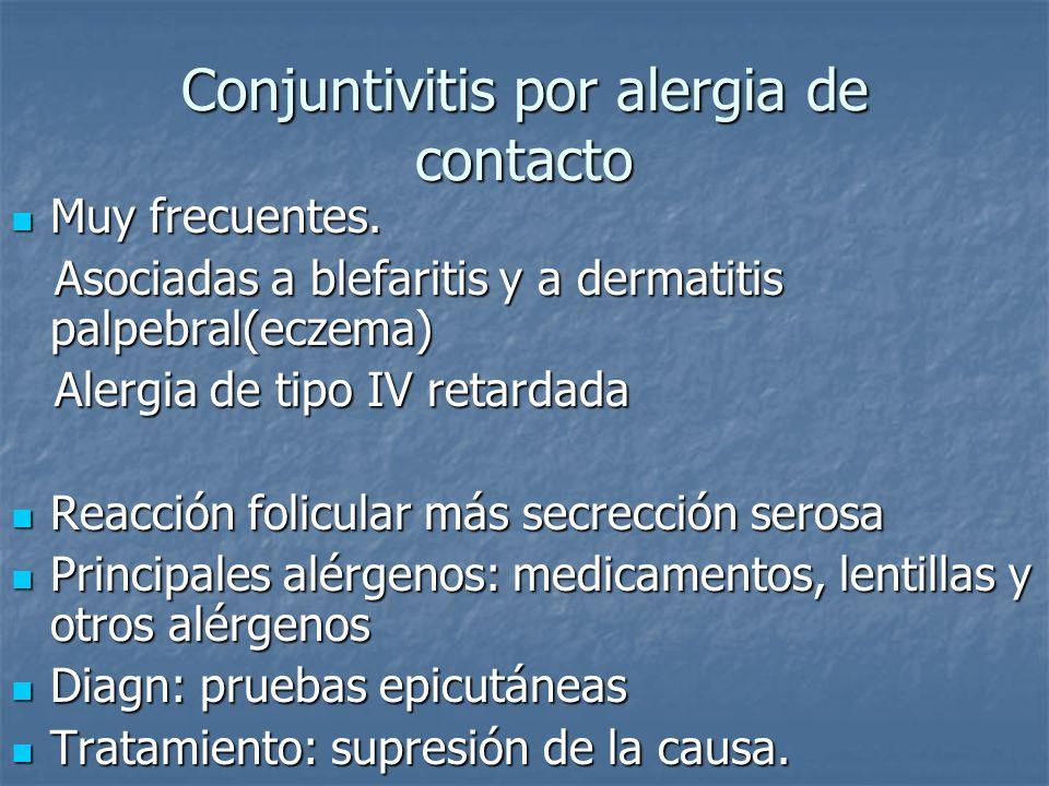Conjuntivitis por alergia de contacto Muy frecuentes. Muy frecuentes. Asociadas a blefaritis y a dermatitis palpebral(eczema) Asociadas a blefaritis y