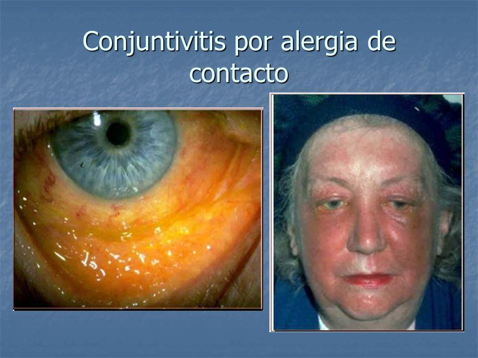 Conjuntivitis por alergia de contacto