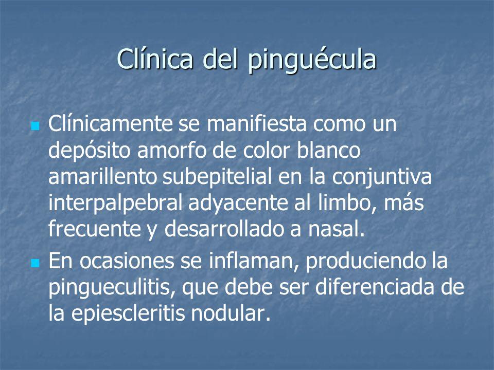 Clínica del pinguécula Clínicamente se manifiesta como un depósito amorfo de color blanco amarillento subepitelial en la conjuntiva interpalpebral ady
