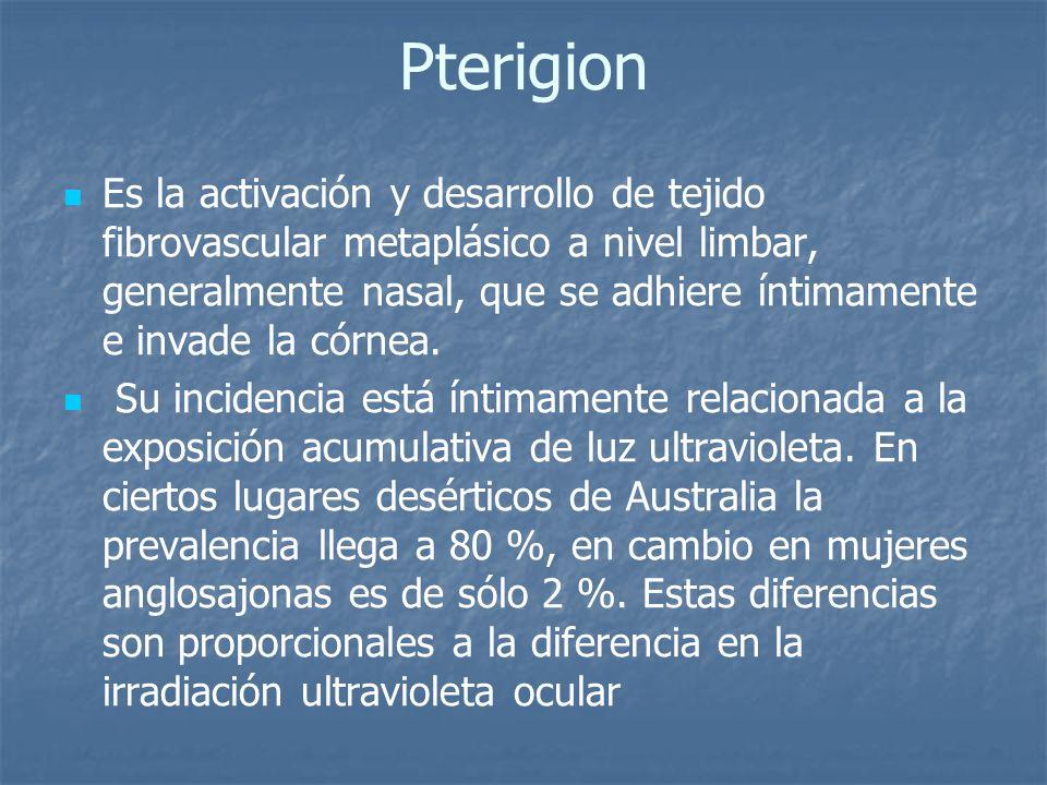 Pterigion Es la activación y desarrollo de tejido fibrovascular metaplásico a nivel limbar, generalmente nasal, que se adhiere íntimamente e invade la
