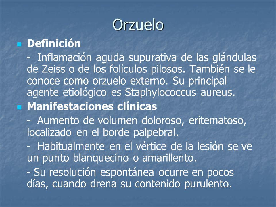Orzuelo Definición - Inflamación aguda supurativa de las glándulas de Zeiss o de los folículos pilosos. También se le conoce como orzuelo externo. Su