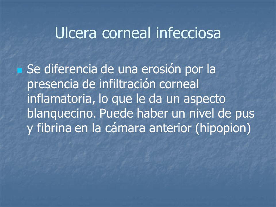 Ulcera corneal infecciosa Se diferencia de una erosión por la presencia de infiltración corneal inflamatoria, lo que le da un aspecto blanquecino. Pue