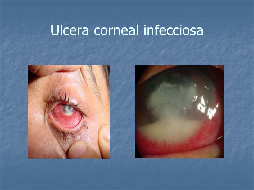 Ulcera corneal infecciosa