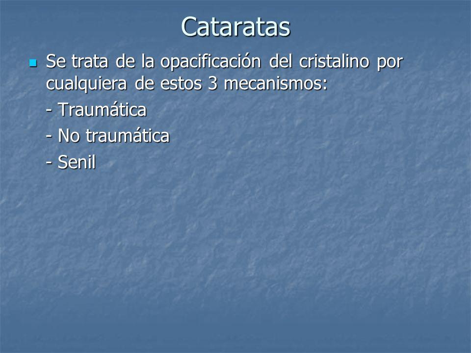 Cataratas Se trata de la opacificación del cristalino por cualquiera de estos 3 mecanismos: Se trata de la opacificación del cristalino por cualquiera