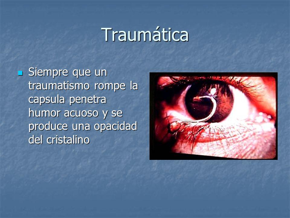 Traumática Siempre que un traumatismo rompe la capsula penetra humor acuoso y se produce una opacidad del cristalino Siempre que un traumatismo rompe