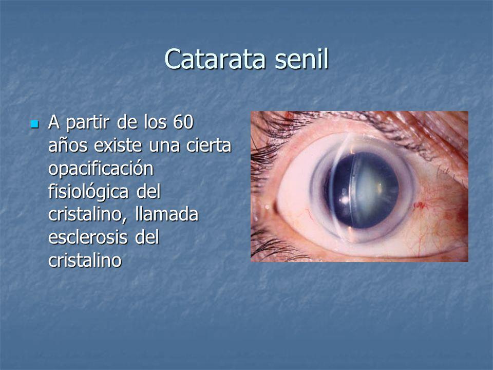 Catarata senil A partir de los 60 años existe una cierta opacificación fisiológica del cristalino, llamada esclerosis del cristalino A partir de los 6