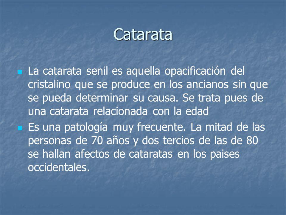 Catarata La catarata senil es aquella opacificación del cristalino que se produce en los ancianos sin que se pueda determinar su causa. Se trata pues