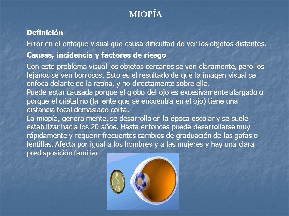 MIOPÍA Definición Error en el enfoque visual que causa dificultad de ver los objetos distantes. Causas, incidencia y factores de riesgo Con este probl
