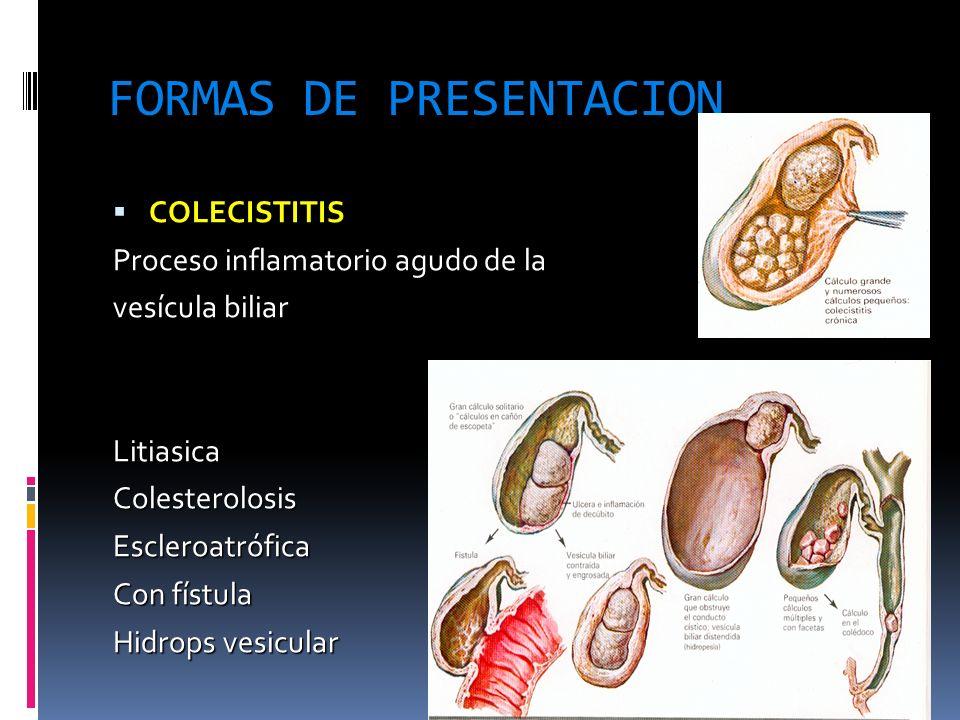 FORMAS DE PRESENTACION COLECISTITIS COLECISTITIS Proceso inflamatorio agudo de la vesícula biliarLitiasicaColesterolosisEscleroatrófica Con fístula Hi