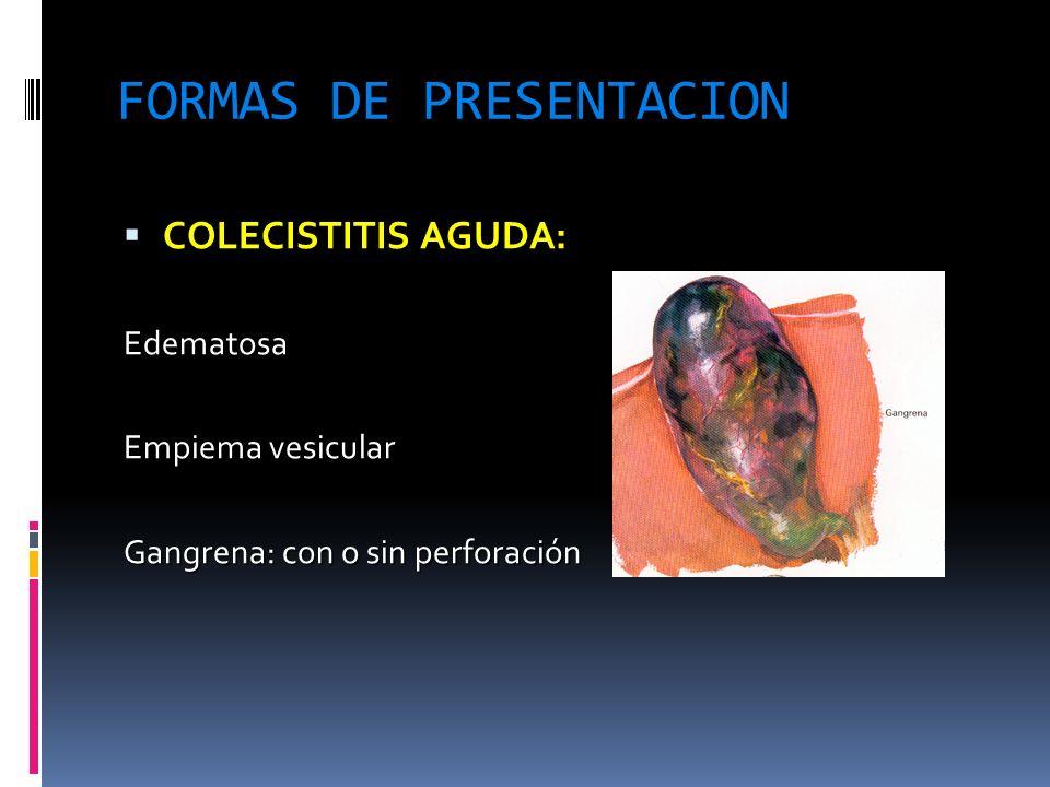 FORMAS DE PRESENTACION COLECISTITIS AGUDA: COLECISTITIS AGUDA:Edematosa Empiema vesicular Gangrena: con o sin perforación