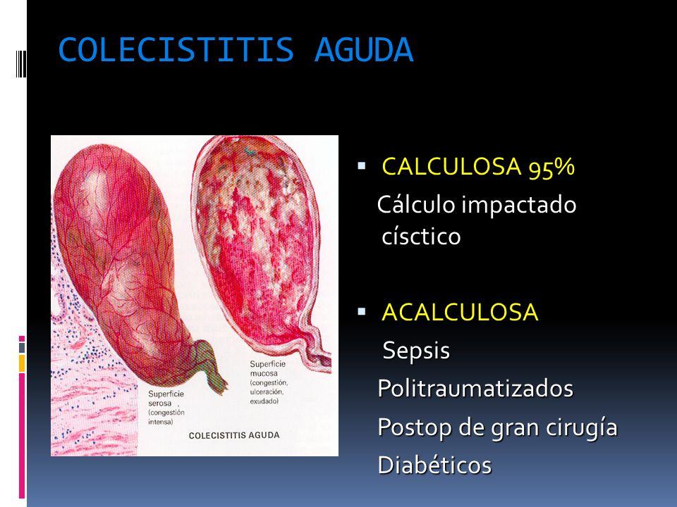 COLECISTITIS AGUDA CALCULOSA 95% CALCULOSA 95% Cálculo impactado císctico Cálculo impactado císctico ACALCULOSA ACALCULOSA Sepsis Sepsis Politraumatiz