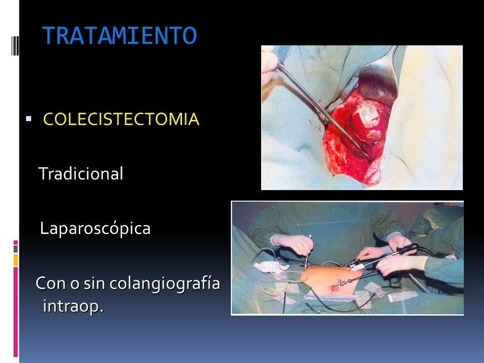 TRATAMIENTO COLECISTECTOMIA COLECISTECTOMIA Tradicional Tradicional Laparoscópica Laparoscópica Con o sin colangiografía intraop. Con o sin colangiogr
