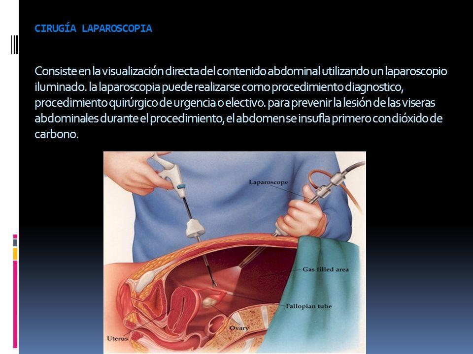 CIRUGÍA LAPAROSCOPIA Consiste en la visualización directa del contenido abdominal utilizando un laparoscopio iluminado. la laparoscopia puede realizar