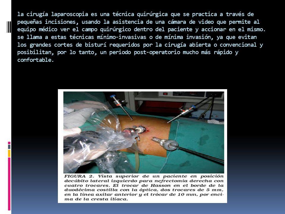 la cirugía laparoscopia es una técnica quirúrgica que se practica a través de pequeñas incisiones, usando la asistencia de una cámara de video que per