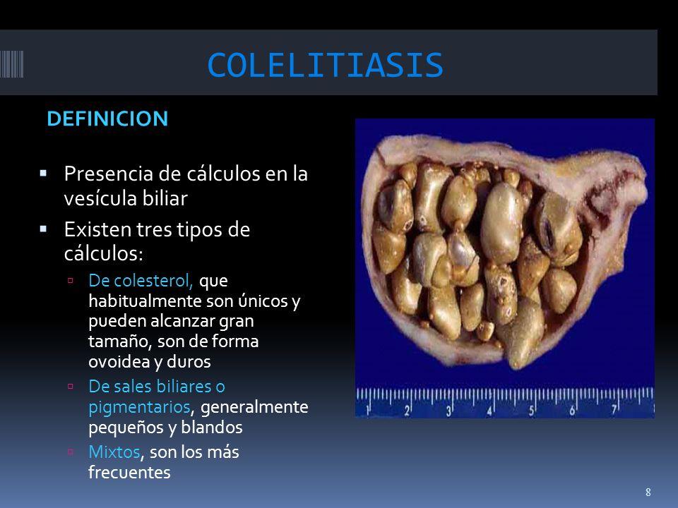 COLELITIASIS DEFINICION Presencia de cálculos en la vesícula biliar Existen tres tipos de cálculos: De colesterol, que habitualmente son únicos y pued