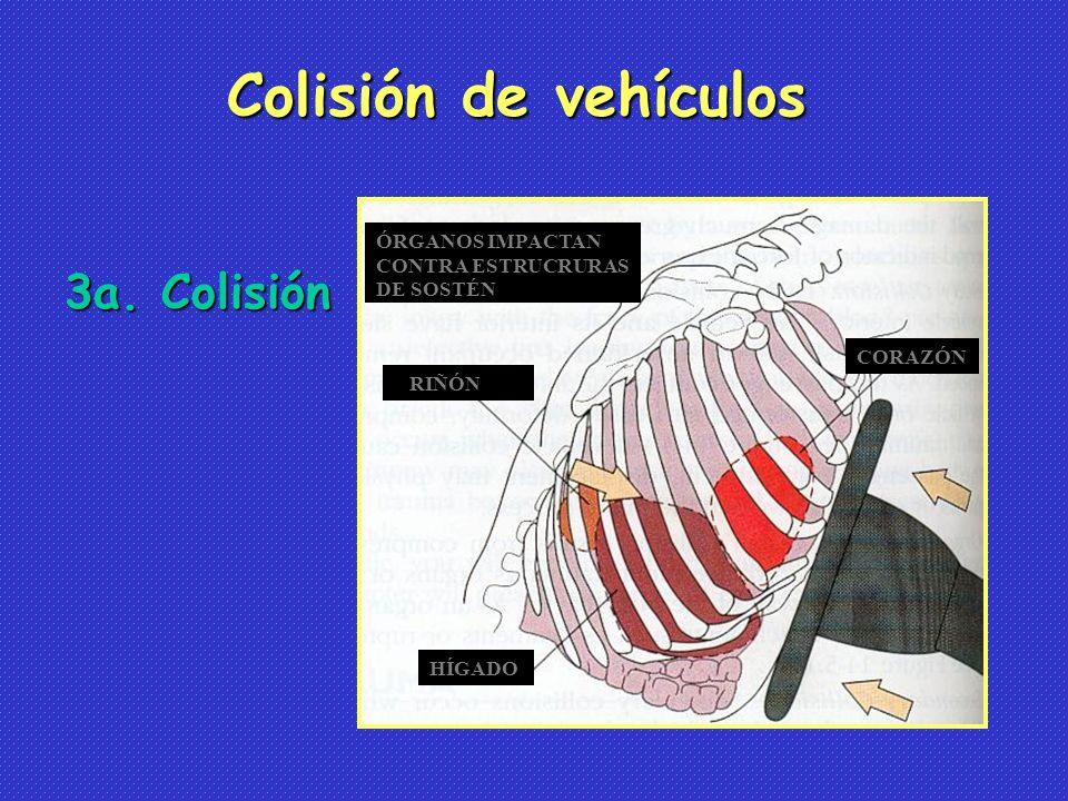 3a. Colisión Colisión de vehículos RIÑÓN HÍGADO ÓRGANOS IMPACTAN CONTRA ESTRUCRURAS DE SOSTÉN CORAZÓN