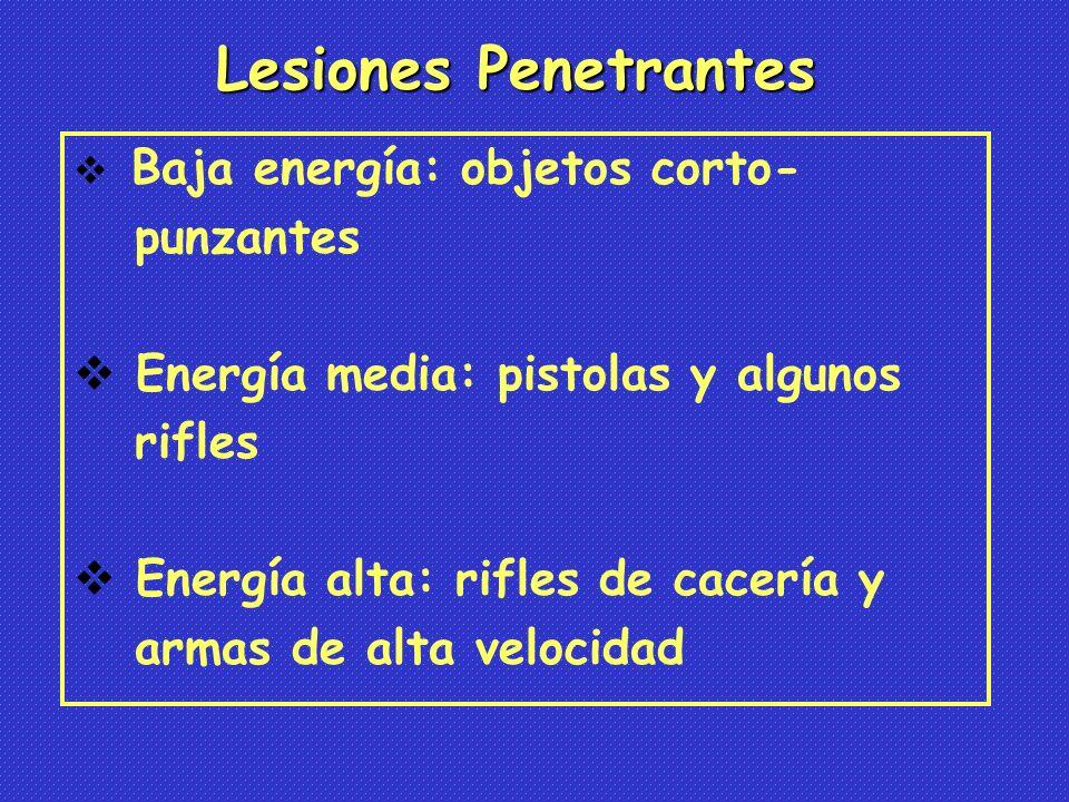 Baja energía: objetos corto- punzantes Energía media: pistolas y algunos rifles Energía alta: rifles de cacería y armas de alta velocidad