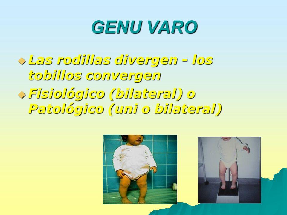 GENU VARO Las rodillas divergen - los tobillos convergen Las rodillas divergen - los tobillos convergen Fisiológico (bilateral) o Patológico (uni o bi