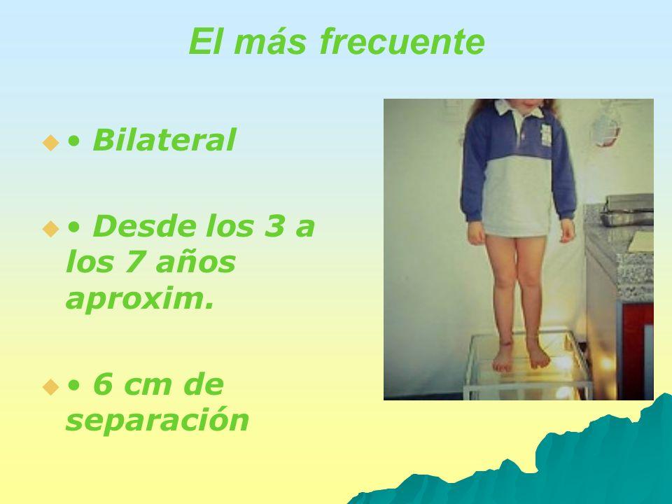 El más frecuente Bilateral Desde los 3 a los 7 años aproxim. 6 cm de separación