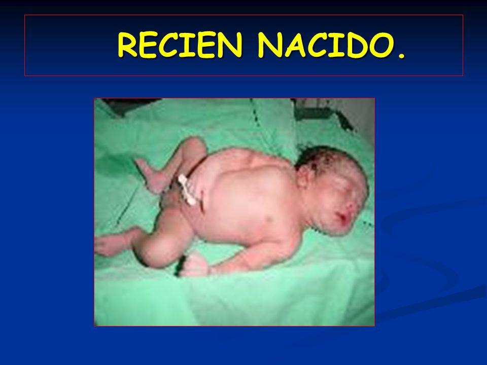 RECIEN NACIDO. RECIEN NACIDO.