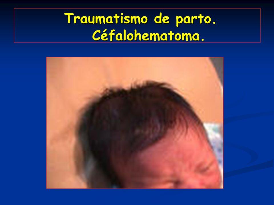 Traumatismo de parto. Céfalohematoma. Traumatismo de parto. Céfalohematoma.